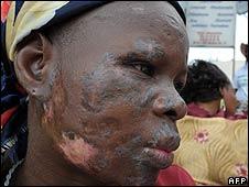 Trafigura victim